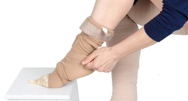 Compression garments for the treatment of lipoedema and lymphoedema.Lymphedema management: Wrapping leg using multilayer bandages to control Lymphedema. Part of complete decongestive therapy (cdt